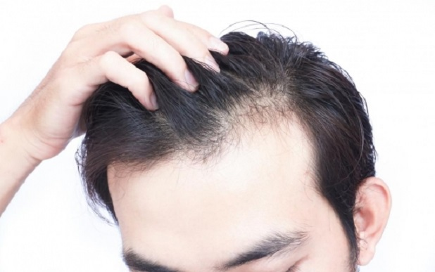 Stop Hair Loss Naturally